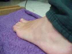 bruise+12.JPG.jpg